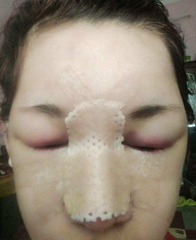 Нгуен Туонг Ви отходит от операции на носу
