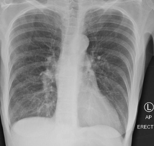 Доктор из США показала во что превращаются легкие пациента с COVID-19 и сравнила их с легкими курильщика и здорового человека (4 фото)