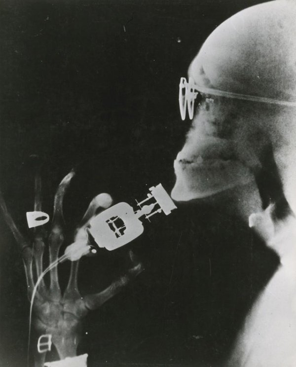 Рентгеновский снимок новой электробритвы Westinghouse во время использования (1941 г.)